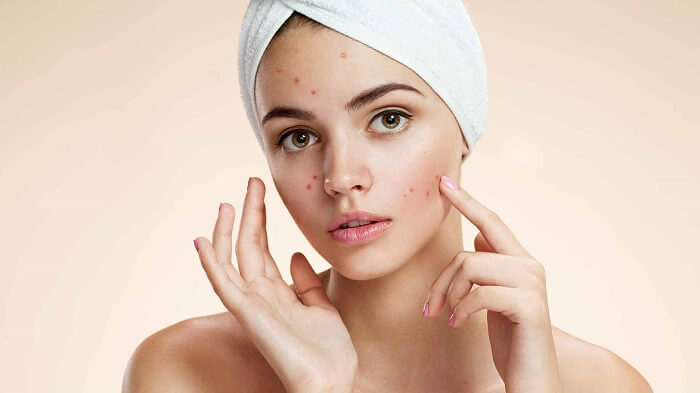 9 Amazing Ways to Stop Acne