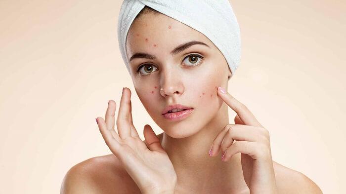 9 Amazing Ways to Stop Acne