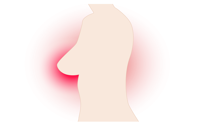 stage 1 breast cancer symptoms