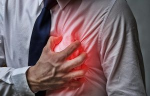 Acid Reflux syndrome