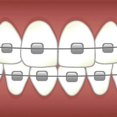 5 Preventive Measures to Take After Attaching Teeth Braces